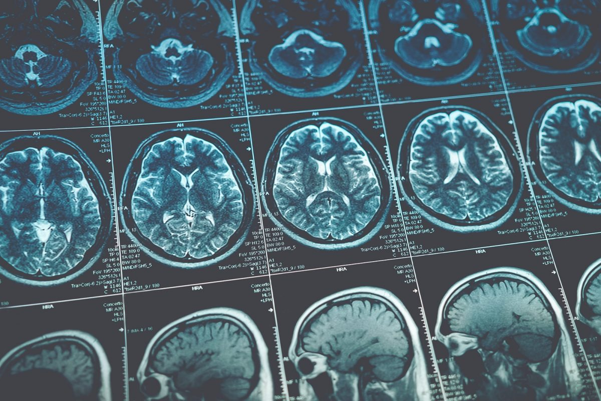 The Greatest Cyber Liability Concerns in Medical Imaging